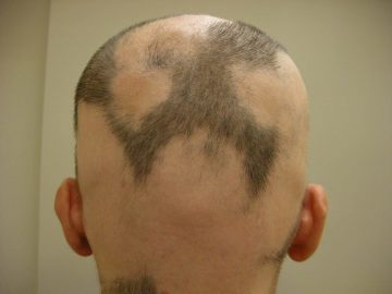 alopecia areata maschie e femminile